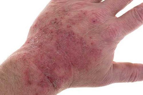 bệnh chàm vi khuẩn