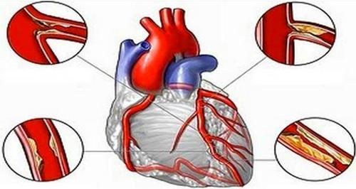 chỉ số cholesterol toàn phần là gì