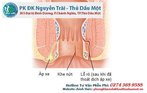 Địa chỉ điều trị apxe hậu môn ở Thuận An