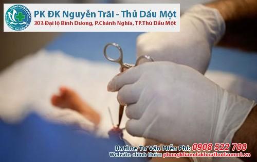Ngắn dây hãm bao quy đầu Bình Dương nên điều trị tại Đa khoa Nguyễn Trãi - Thủ Dầu Một