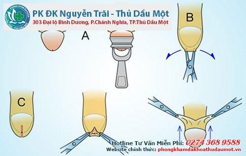 Xâm lấn tối thiểu Hàn Quốc - kỹ thuật cắt bao quy đầu