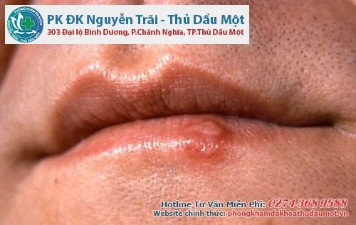 Hình ảnh mụn rộp sinh dục nam ở miệng