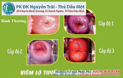 Sự khác nhau của bề mặt cổ tử cung bình thường và bị viêm nhiễm