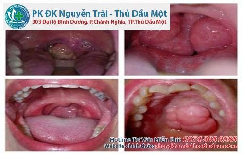 Dấu hiệu và phương pháp chữa sùi mào gà ở miệng