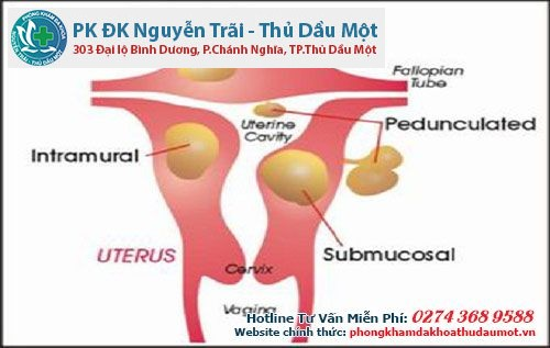 Bệnh u xơ tử cung gây ra nhiều biến chứng
