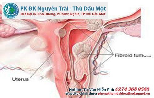 Nhận biết sớm các dấu hiệu u xơ tử cung để điều trị kịp thời
