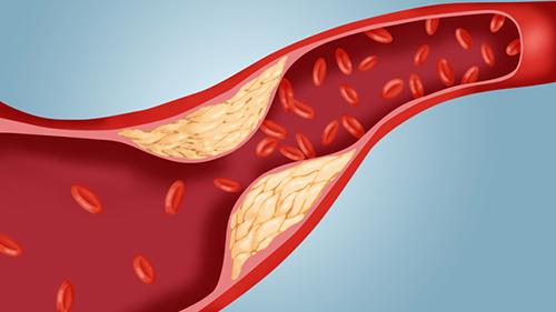 chỉ số cholesterol toàn phần