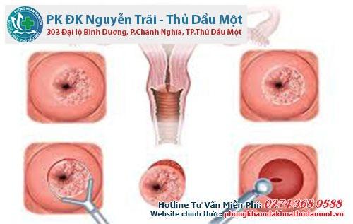 Điều trị viêm lộ tuyến cổ tử cung bằng đốt điện hoặc đốt laser