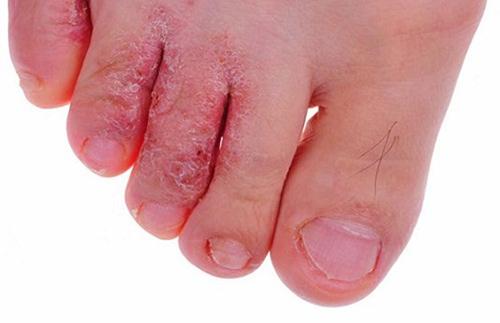 hình ảnh bệnh da liễu nắm kẽ chân