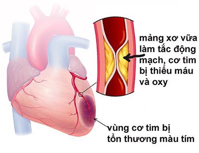Những tác hại của bệnh tim mạch và biện pháp phòng tránh