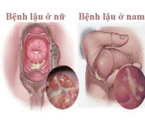 những triệu chứng bệnh lậu nam và nữ