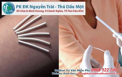 Phá thai bằng que rất nguy hiểm, thai phụ cần đến Đa khoa Nguyễn Trãi - Thủ Dầu Một để bỏ thai an toàn