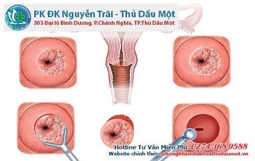 Phương pháp điều trị viêm tử cung - viêm lộ tuyến tử cung