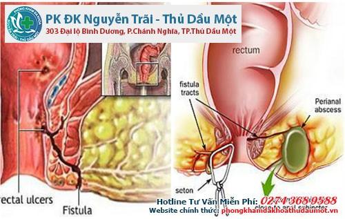Rò hậu môn xuyên cơ thắt là gì và cách điều trị
