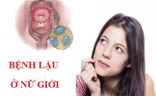 Các triệu chứng trong thời gian ủ bệnh lậu ở nữ