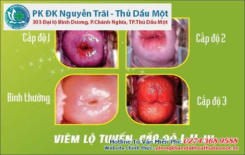 Nguyên nhân gây ra viêm lộ tuyến cổ tử cung