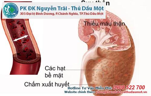 sỏi tuyến tiền liệt có thể gây suy thận - chuatrinamkhoa