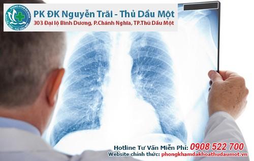 Quy trình chụp X quang chuẩn tại Đa Khoa Thủ Dầu Một