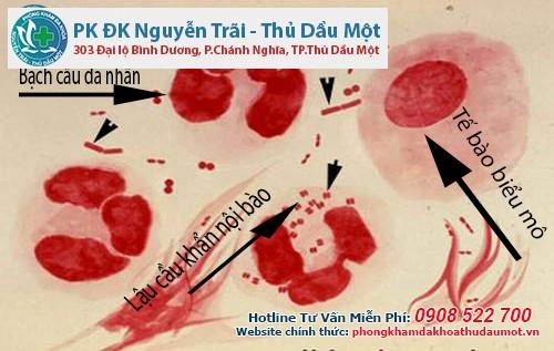 Địa chỉ nào điều trị bệnh lậu cầu tại Biên Hòa Đồng Nai uy tín và chất lượng?
