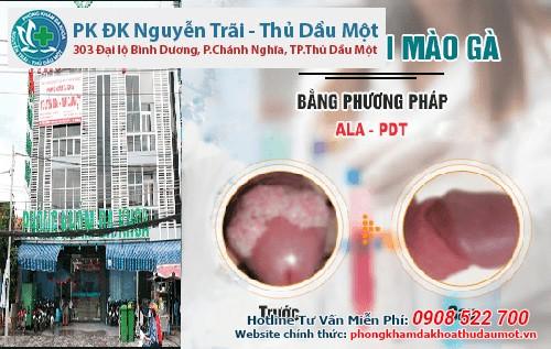 Phòng khám Đa khoa Nguyễn Trãi - Thủ Dầu Một trị sùi mào gà hiệu quả nhanh chóng