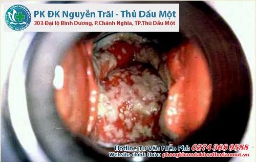 Viêm âm đạo là căn bệnh phụ khoa thường gặp nhất