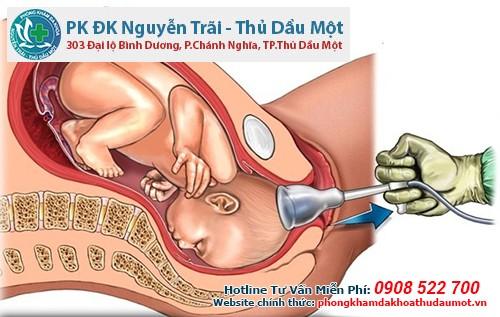 Hút thai là biện pháp phá thai dưới 8 tuần tuổi