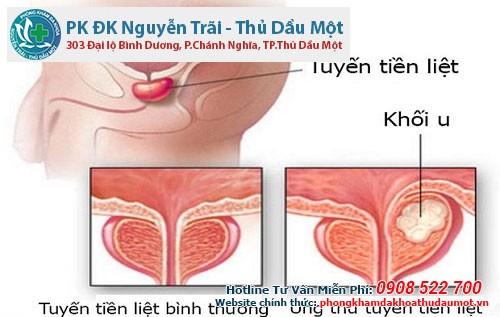 Tuyền tiến liệt ở nam giới rất dễ biến chứng thành ung thư