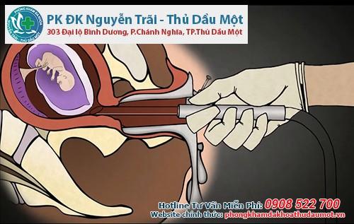 Phá thai ở Đắk Nông nên đến phòng khám Đa khoa Nguyễn Trãi - Thủ Dầu Một để thực hiện hút thai an toàn