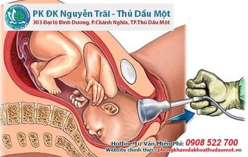 Phương pháp phá thai 3 tháng rưỡi an toàn được bác sĩ áp dụng tại phòng khám