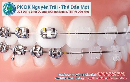 phòng khám nha khoa răng uy tín Thủ Dầu Một Bình Dương uy tín ở đâu