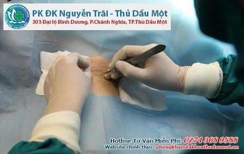 Phương pháp cắt tuyến mồ hôi nách vứa an toàn, không đau