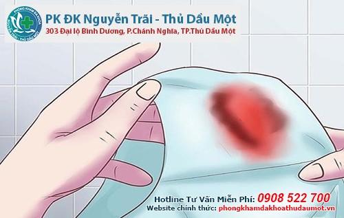 Sau khi quan hệ chảy máu tươi nhưng không đau có sao không?