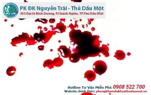 Thắc mắc uống thuốc phá thai ra máu như thế nào?