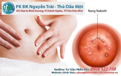 Tổng quan về bệnh Nang Naboth cổ tử cung ở nữ giới