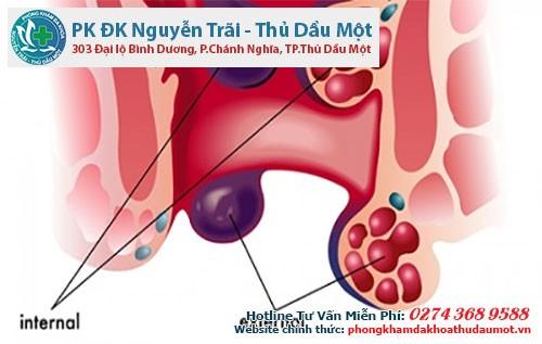 Bệnh trĩ ngoại tắc mạch
