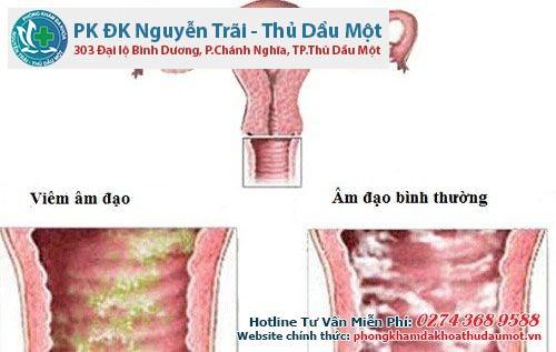 Điều trị bệnh viêm âm đạo bằng các vị thuốc tự nhiên