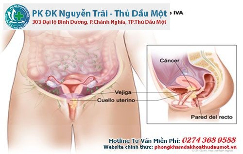 Bệnh viêm tử cung gây ra nhiều biến chứng nguy hiểm