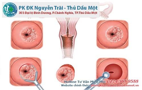 Nạo phá thai rất dễ gây viêm lộ tuyến cổ tử cung